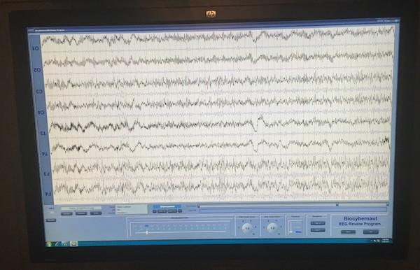 Вот как выглядит результат сканирования мозговых волн. Здесь показаны быстрые дельта-волны в моём мозге. Это редкий случай, характерный, по их словам, только для 1% людей, которых они наблюдали. Это признак изменения реальности силой сознания.
